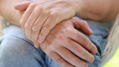 خرافات حول مرض البهاق