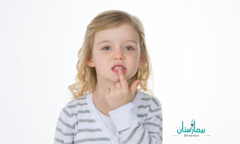تسوس الأسنان عند الأطفال | مشكلة تواجه كل أم !
