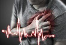 النوبات القلبية عند الشباب