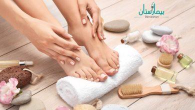 تشقق القدمين | نصائح للتمتع بأقدام ناعمة كالحرير