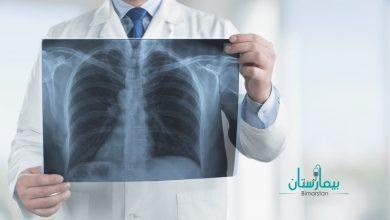 أسباب الحساسية الصدرية وطرق علاج حساسية الصدر بالاعشاب