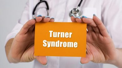 متلازمة تيرنر