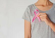 أشعة الماموجرام لتصوير الثدي